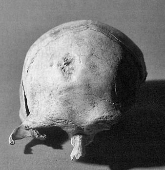 The Maglemose skull from Bislev at Nibe
