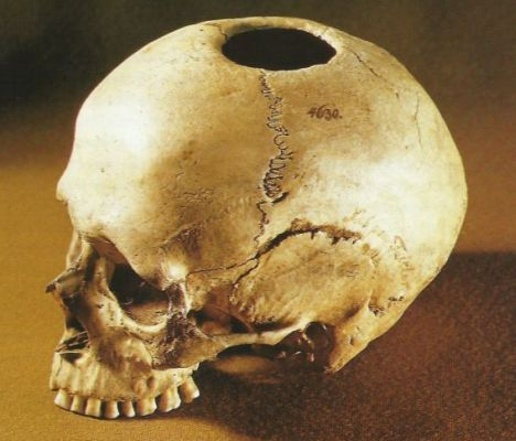 Trepanated skull from a Jættestue at Næs on Falster.