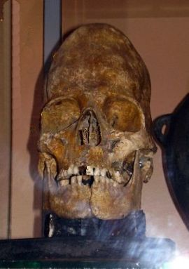 A typical deformated skull - Museum of Stavropol